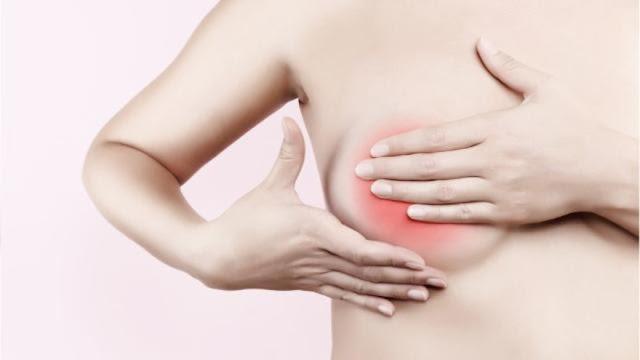 Cara Menghilangkan Tumor Payudara Tanpa Operasi