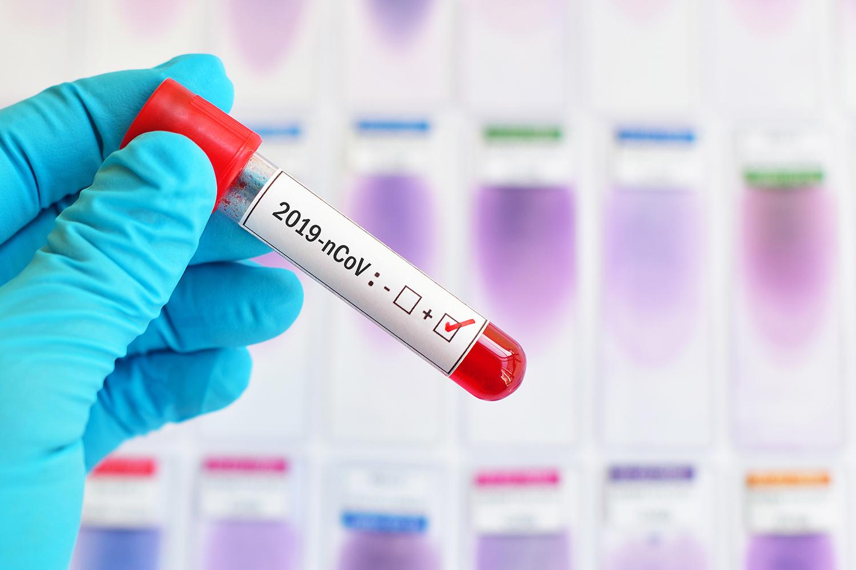 Segui qui i progressi sui vaccini per il Coronavirus