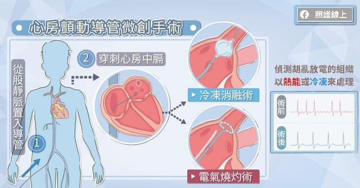 心房顫動的微創導管手術