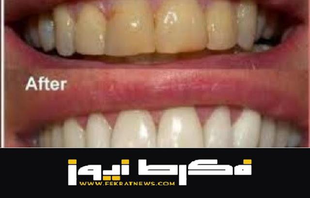 خل التفاح والحل السحري لتبييض الأسنان