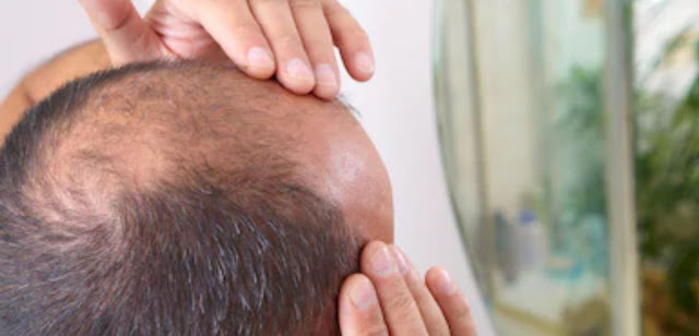 what are the causes, symptoms and treatment of alopecia areata (baldness)