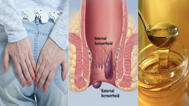 Easy Ways On How To Get Rid of (Almoranas) Hemorrhoids Naturally