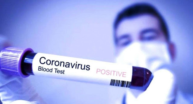 2 WNI Positif Corona, Berikut Faktanya!