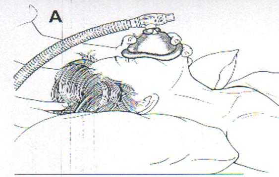 Demam Thypoid : Gejala, Diagnosis ICD 10 dan Pengobatan