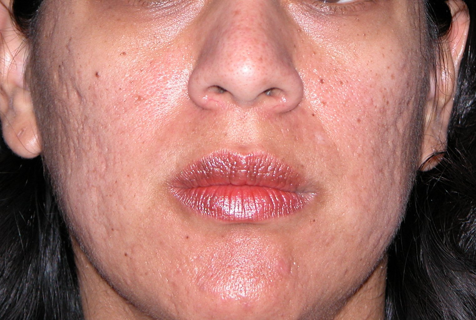 Acne Scars - Eliminate Acne Scars By Following These Easy ...