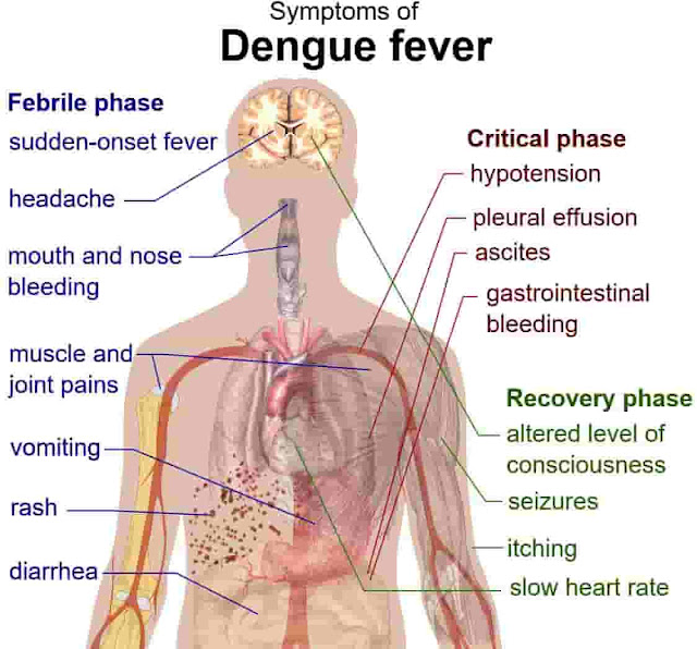 dengue virus fever