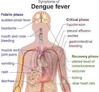 dengue virus fever