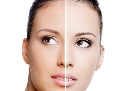 تفتيح البشرة | Skin whitening