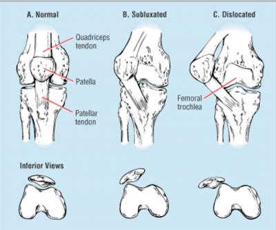 tempurung lutut terkeluar
