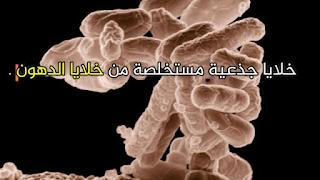 علاج الأمراض بالخلايا الجذعية