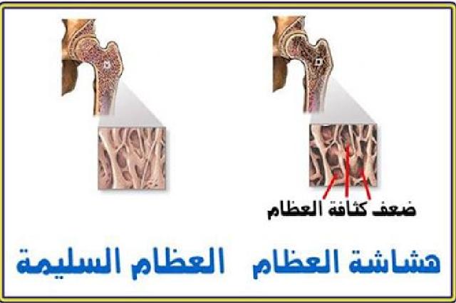 هشاشة العظام الأسباب والأعراض والعلاج ؟؟