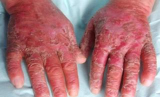 Titik refleksi untuk penyakit Pellagra