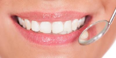 Cara Mudah untuk Memutihkan Gigi Secara Alami