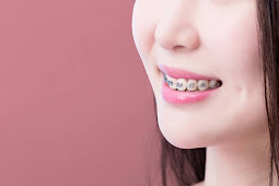 3 Foods to Avoid If You Use Dental Braces