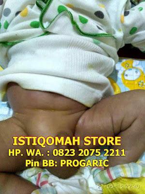 Cara Mengobati Hernia pada Bayi secara Alami