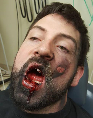 Man's face shattered after e-cigarette exploded in his mouth (photos)
