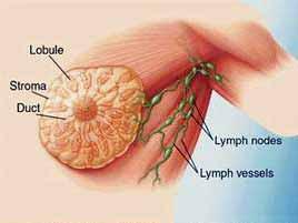Tanda dan Gejala Penyakit Kanker Payudara