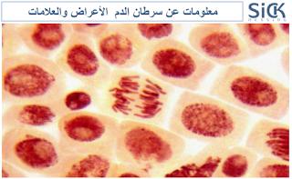 معلومات عن سرطان الدم  الأعراض والعلامات