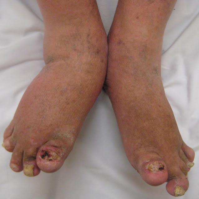 सोराइटिक आथ्राइटिस [ S . 0 . ] रोग के लक्षण , रोग के निदान , एव सावधानिया ? Psoriasic othitis [S. 0. ] Symptoms of the disease, diagnosis of disease, and precautions?