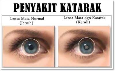 Pulihkan Penyakit Katarak Tanpa Pembedahan Elak Mata Menjadi Buta
