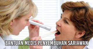 Bantuan medis penyembuhan sariawan