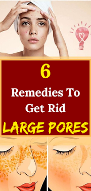 6 Remedies To Get Rid Large Pores
