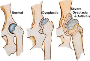 hoftedysplasi symptomer