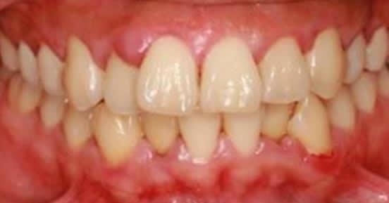 gonflement des gencives d 39 une infection des sinus soins dentaires. Black Bedroom Furniture Sets. Home Design Ideas