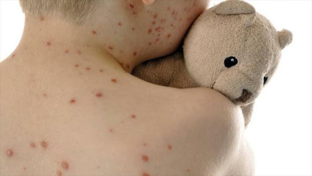 Nueva York declara una emergencia pública por un brote de sarampión