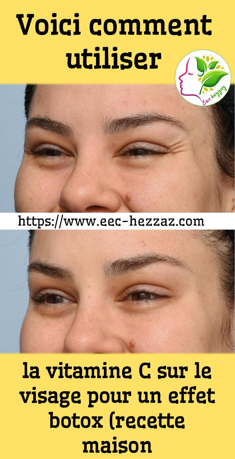 Voici comment utiliser la vitamine C sur le visage pour un effet botox (recette maison