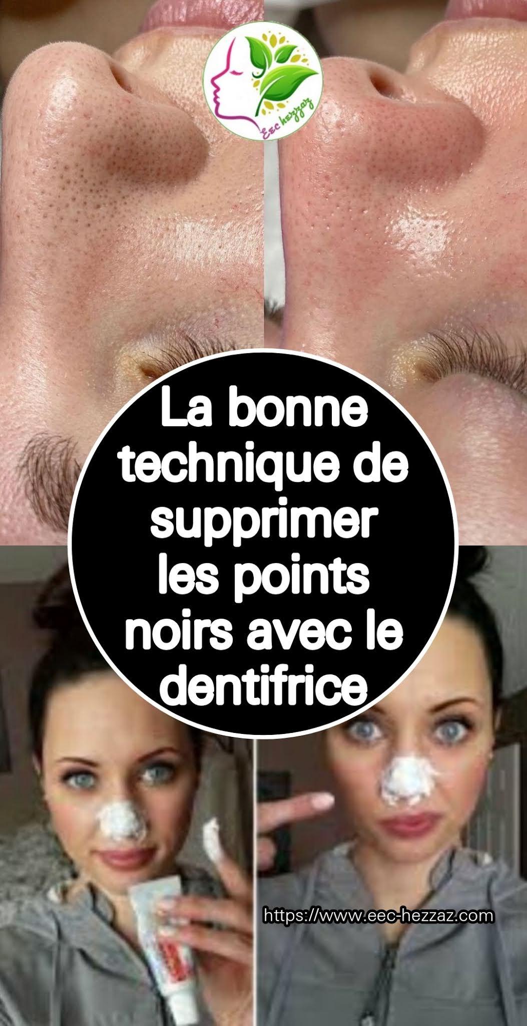 La bonne technique de supprimer les points noirs avec le dentifrice