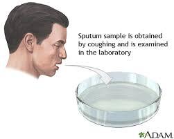 Sputum, Transtracheal aspirates, translaryngeal aspiration, bronchoalveolar lavage.