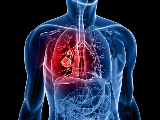 What You Need to be Aware About Lung Cancer