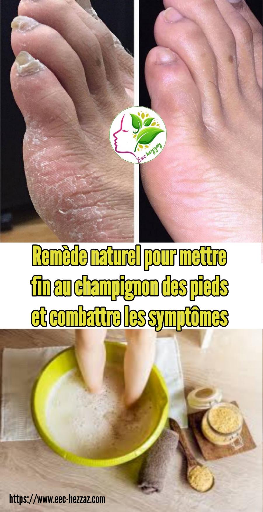 Remède naturel pour mettre fin au champignon des pieds et combattre les symptômes