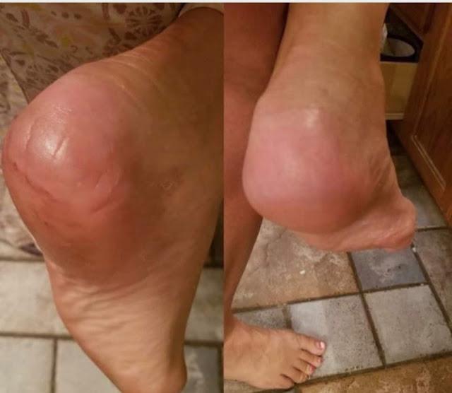 Éliminer les fissures dans les pieds avec ces astuces simples et efficaces