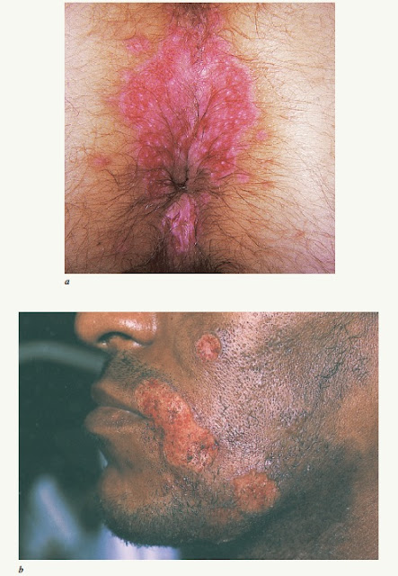 Chronic herpes due to HSV-2 in HIV-infected patients