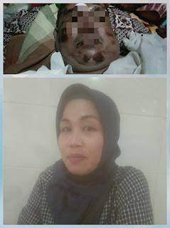 Setahun Menunggu Hasil Dari Propam Polda,Adik meminta Keadilan kematian Tak Wajar kakak Saat Di Tangkap