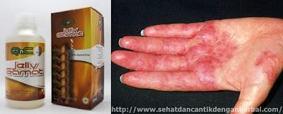 Obat yang ampuh untuk menyembuhkan dermatitis secara alami