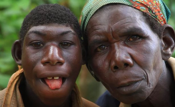 Mum reveals how her son is always bullied by villagers because he lives in jungle among wild animals, eats grass and can't speak (photos)