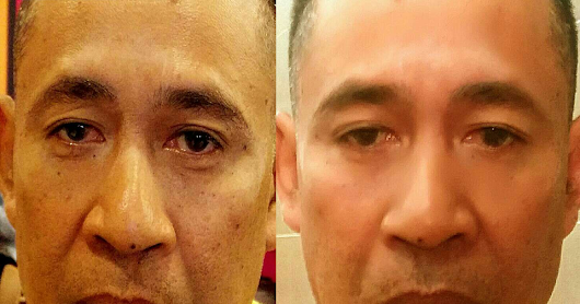 Instantly Ageless ! 瞬速逆转青春!