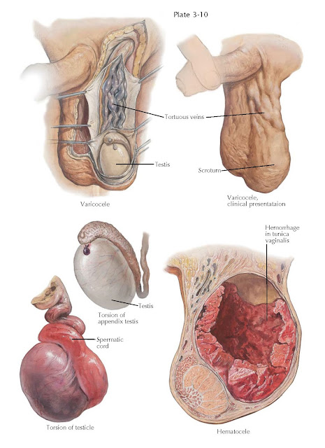 VARICOCELE, HEMATOCELE, TORSION