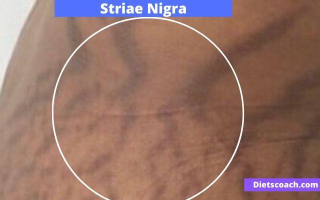 Striae Nigra