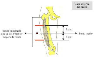 Como se pone una inyeccion intramuscular en el gluteo
