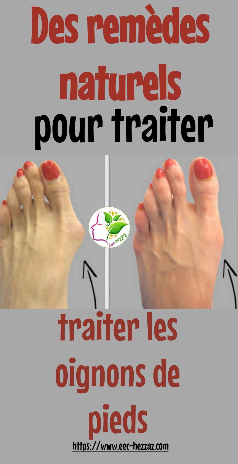 Des remèdes naturels pour traiter les oignons de pieds