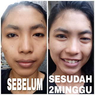 after before penggunaan raiku beauty