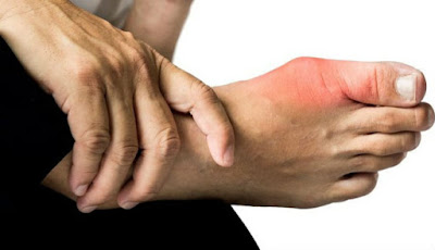 Penyakit asam urat di sendi kaki jempol