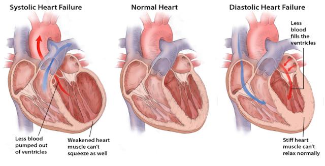 gagal jantung kanan dan kiri