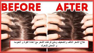 خلطات طبيعية لترميم الشعر التالف مع  تكثيف و تطويل وملئ فرغات الشعر وترطيبة %25D9%2585%25D8%25A7%25D8%25B3%25D9%2583%25D8%25A7%25D8%25AA%2B%25D8%25B7%25D8%25A8%25D9%258A%25D8%25B9%25D9%258A%25D8%25A9%2B%25D9%2584%25D8%25B9%25D9%2584%25D8%25A7%25D8%25AC%2B%25D8%25A7%25D9%2584%25D8%25B4%25D8%25B9%25D8%25B1%2B%25D8%25A7%25D9%2584%25D8%25AA%25D8%25A7%25D9%2584%25D9%2581%2B%25D9%2588%25D8%25A7%25D9%2584%25D8%25B6%25D8%25B9%25D9%258A%25D9%2581%2B%25D9%2588%25D8%25AA%25D8%25B9%25D9%258A%25D8%25AF%2B%25D9%2584%25D8%25B4%25D8%25B9%25D8%25B1%25D9%2583%2B%25D9%2582%25D9%2588%25D8%25AA%25D8%25A9%2B%25D9%2588%25D9%2586%25D8%25B9%25D9%2588%25D9%2585%25D8%25AA%25D8%25A9%2B%25D9%2588%25D9%2584%25D9%2585%25D8%25B9%25D8%25A7%25D9%2586%25D8%25A9.