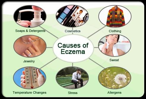 Eczema Skin Causes, Symptoms, Types, Diagnosis, Treatments ...