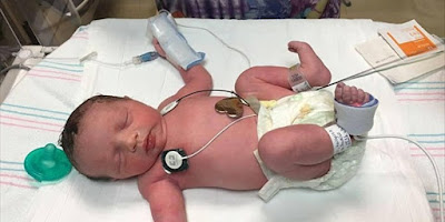Μωρό γεννήθηκε ΔΥΟ ΦΟΡΕΣ!Το έβγαλαν από τη μήτρα για να το χειρουργήσουν και το ξαναέβαλαν
